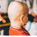 Covid-19 ha tenido un gran impacto en la atención del cáncer infantil